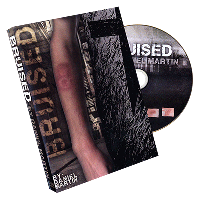 Bruised by Dan Sperry